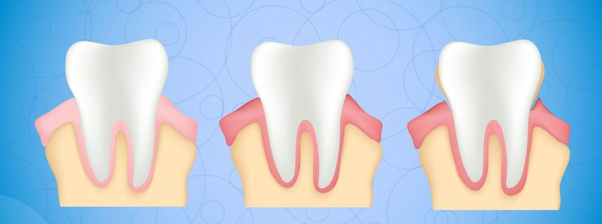 chirurgia parodontale milano corso buenos aires milano pierluigi petrelli