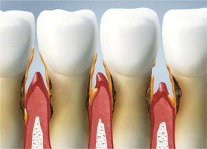 petrella pierluidi odontoiatria milano in via redi
