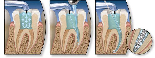endodonzia studio dentistico petrelli pierluigi milano