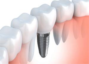 pierluigi petrelli dentista milano via rodi 8 dentista san donato milanese